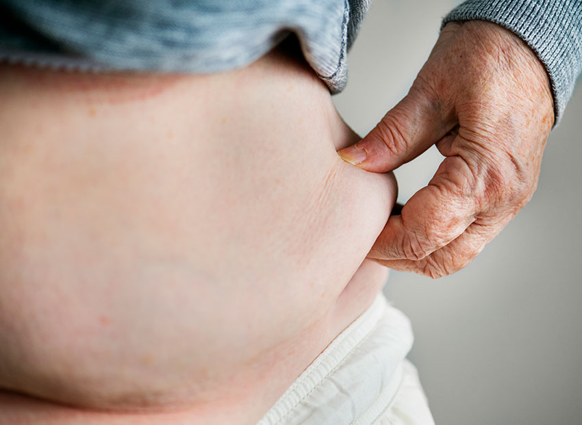 obesity and gut health